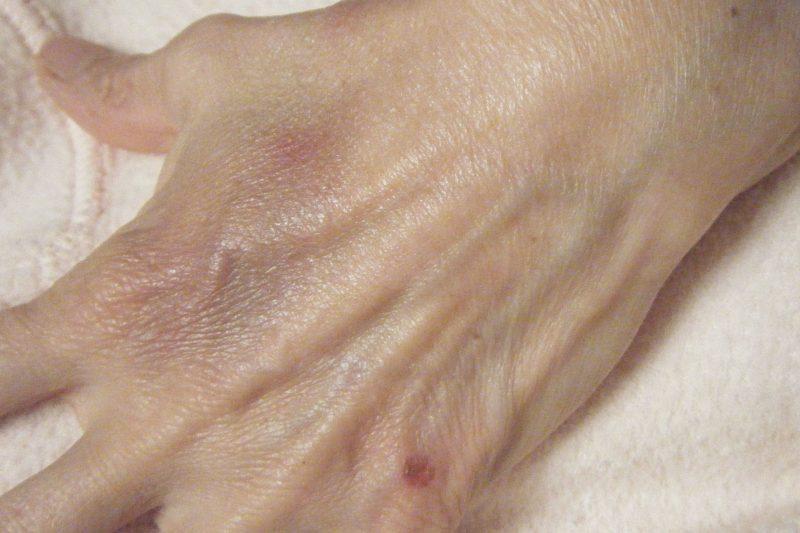 Ugly hand 2